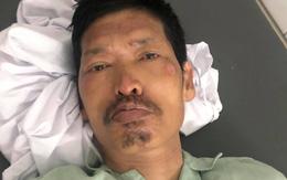 Hà Nội: Bị TNGT nguy kịch, người đàn ông được bác sĩ cứu sống nhưng 10 ngày chưa có người thân đến nhận