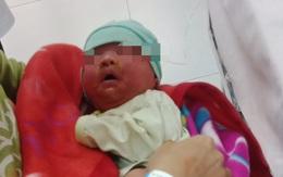 Bé 20 ngày tuổi nhiễm độc, toàn thân mẩn đỏ, mũi miệng viêm loét vì sai lầm của bố mẹ