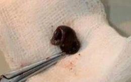 """Nam sinh bị đỉa dài 5cm chui vào mũi """"trú"""" nhiều ngày"""