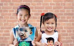 Để tiếng cười trọn vẹn thành hiện thực cho trẻ em hở môi, hàm ếch
