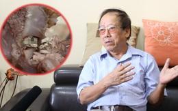 Chuyên gia sinh học và thực phẩm bình luận về thông tin cháo sườn có ổ giòi ở Hà Nội