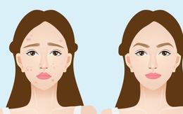 4 loại vitamin nhóm B giúp da khỏe đẹp