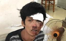 Tên cướp bất tỉnh khi tông xe vào dải phân cách