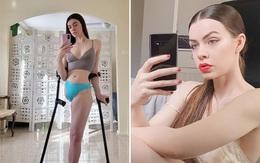 Người mẫu một chân lấy lại tự tin nhờ mạng xã hội