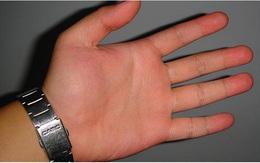 3 đặc điểm trên bàn tay cho thấy thận của nam giới đang rất khỏe mạnh, nếu bạn có đủ cả thì xin chúc mừng