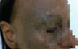 Người phụ nữ ở TP.HCM mắc bệnh lạ, đột nhiên rụng tóc, hói nửa đầu