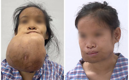 """""""Khổ sở"""" với khối u khủng, suốt nhiều năm cô gái trẻ phải dùng khăn che kín mặt"""
