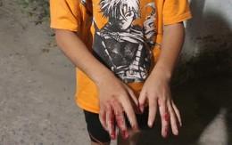 Hé lộ nguyên nhân thực sự vụ bé trai bị bố đánh bằng cây tre khiến dư luận phẫn nộ ở TPHCM