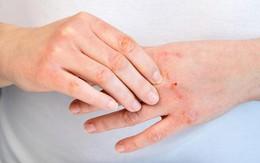 Cải thiện viêm da cơ địa (chàm, eczema) tại nhà bằng bộ đôi từ thiên nhiên