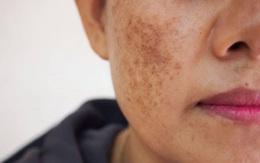 Giải pháp cải thiện nám da mặt an toàn, hiệu quả từ bộ đôi sản phẩm thảo dược