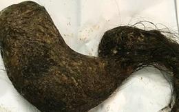 Thanh Hóa: Bé gái có thói quen ngậm tóc của bà và mẹ, 9 năm sau phát hiện 1kg tóc trong dạ dày