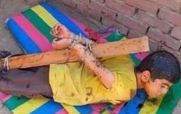 Bé 7 tuổi bị bố phạt trói vào cột, phủ mật cho ong đốt