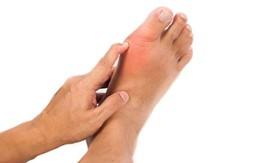 Giảm đau gút ở khớp ngón chân cái an toàn nhờ sản phẩm thảo dược