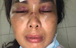Một người vợ tố cáo bị chồng chích điện, hành hung, dìm xuống ao nước