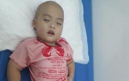 Xót xa hoàn cảnh bé trai 2 tuổi mờ hai mắt vì căn bệnh u não