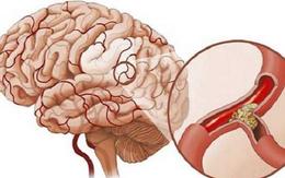 Phòng ngừa tai biến mạch máu não ở người tăng huyết áp
