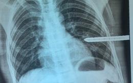 Nghệ An: Cứu sống bệnh nhi bị thanh sắt đâm thấu ngực