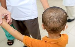 Hy hữu: Cứu sống cháu bé 5 tuổi bị 50 vết ong đốt khi trèo hái nhãn