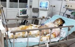 Xót xa mẹ nguy kịch vì bỏng nặng, hai con nhỏ không người chăm sóc phải gửi hàng xóm