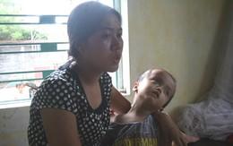 Gập ghềnh đường đến nhà bé 4 tuổi bị u sọ hầu