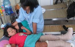 Hình ảnh mới nhất về cô bé cơ thể cháy đen sau ca phẫu thuật thay da
