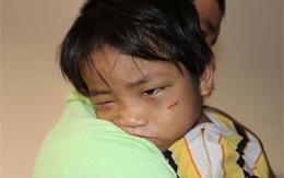 """""""Địa ngục trần gian"""" của cậu bé 3 tuổi bị bắt đi ăn xin"""
