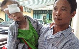 """""""Xót xa cảnh đói khổ của cháu bé 12 tuổi nặng 10kg"""": Cứu giúp con mắt còn lại cho em..."""