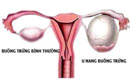 Bị u nang buồng trứng sẽ khó có con?