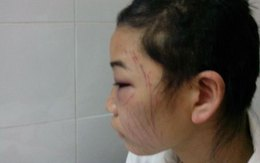 Chồng bắt vợ tự cắt tóc, rạch mặt vì... tin nhắn lạ