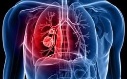 5 loại ung thư gây chết nhiều nhất