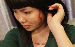 Cô gái bị xăm quái vật vào mặt và ngực nhận 400 triệu bồi thường