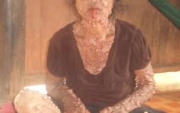 Cám cảnh người phụ nữ có hàng nghìn khối u trên người