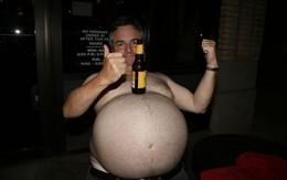 Nỗi khổ của người đàn ông có bụng to như mang bầu 9 tháng