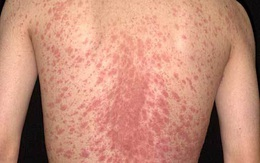 Tẩy sạch các bệnh vẩy trên da bằng những sản phẩm thiên nhiên