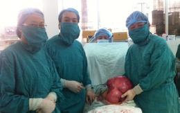 """Bóc khối u xơ tử cung """"siêu khủng"""" nặng gần… 10kg"""