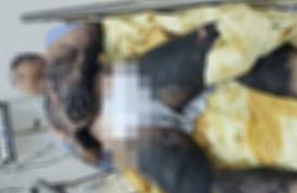 Bé trai bỏng nặng do tự dùng cồn làm thí nghiệm tại nhà