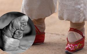"""Những cách làm đẹp kỳ dị (9): Nhìn bàn chân """"quái vật"""", ai cũng rùng mình cách làm đẹp thời xa xưa"""