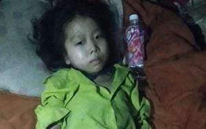 Bố mẹ bất lực nhìn đôi chân của con liệt dần, các khớp sưng vù vì không tiền điều trị