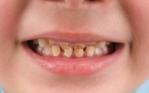 Răng sữa bị sâu, cần làm gì?