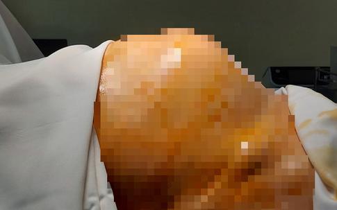 """Bụng to như bầu 7 tháng, người phụ nữ U70 ở Hà Nội không ngờ bị ung thư dù """"khoẻ như trâu"""""""