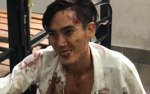 Thanh niên ngáo đá gây thương tích cho dân phòng