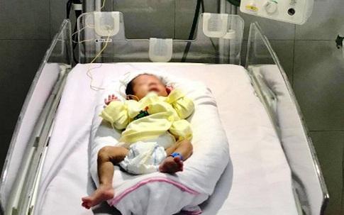 Cứu sống bé 28 tuần tuổi mắc bệnh hoại tử dạ dày
