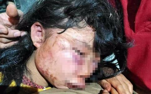 Phút hãi hùng của nữ sinh lớp 6 bị hành hung bên rừng cao su
