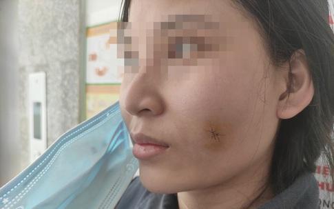 Tiêm filler để tạo khuôn mặt đầy đặn, cô gái 23 tuổi bị nhiễm trùng, áp xe má