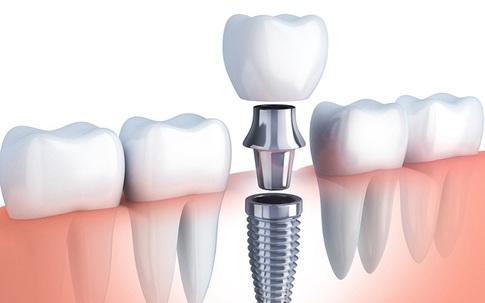 5 yếu tố quyết định tỷ lệ thành công của trồng răng Implant