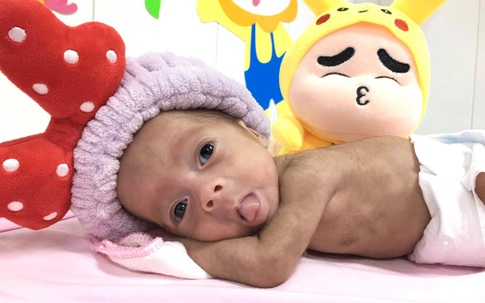 Bé sinh non bị tím tái, ngưng thở được cứu sống ngoạn mục