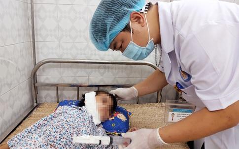 Ngã từ trên cao xuống, bé gái bị thanh sắt xuyên từ vùng cổ qua hàm tới tuyến mang tai