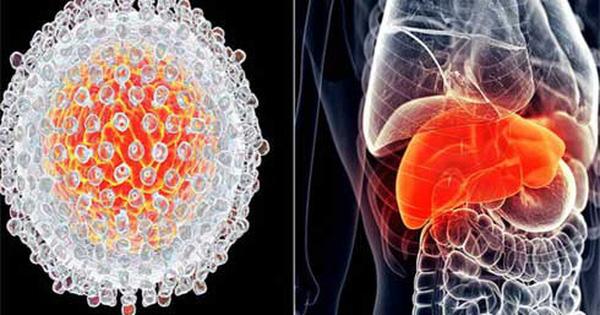 Có 7 triệu chứng này kéo dài 2 tuần: Hãy đi khám ung thư gan để giữ cơ hội sống cao nhất