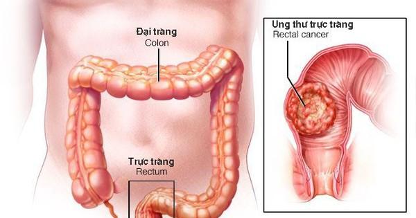 Ung thư đường tiêu hóa, họa từ những món ăn quen thuộc