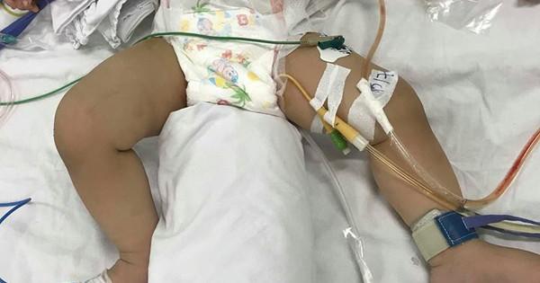 Bé trai 11 tháng tuổi bị mẹ ruột dùng dao đâm nhiều nhát vào bụng nguy kịch